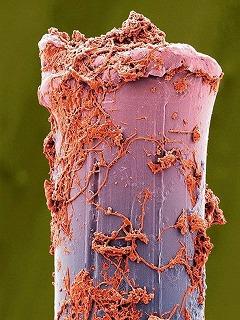 歯ブラシの菌
